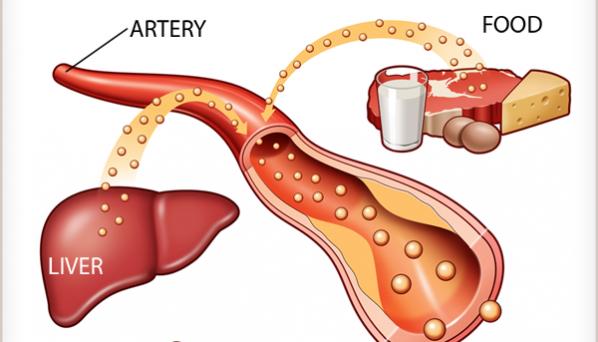 kolesterol-cholesterol